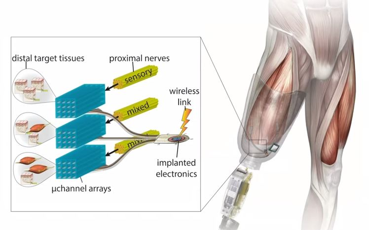 Bionic knee joint